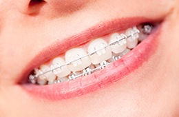 Closeup of smile with ceramic braces