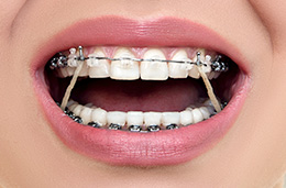 Closeup of smile with braces and rubber bands